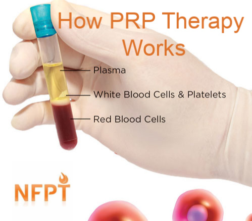 how-prp-works3