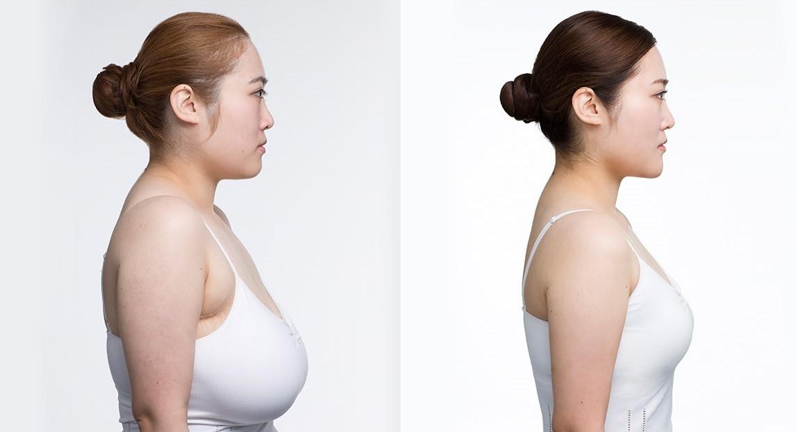 breast reduction Katarzyna Mackenzie